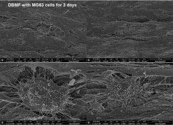 DBMF with MG63 Cells for 3 Days